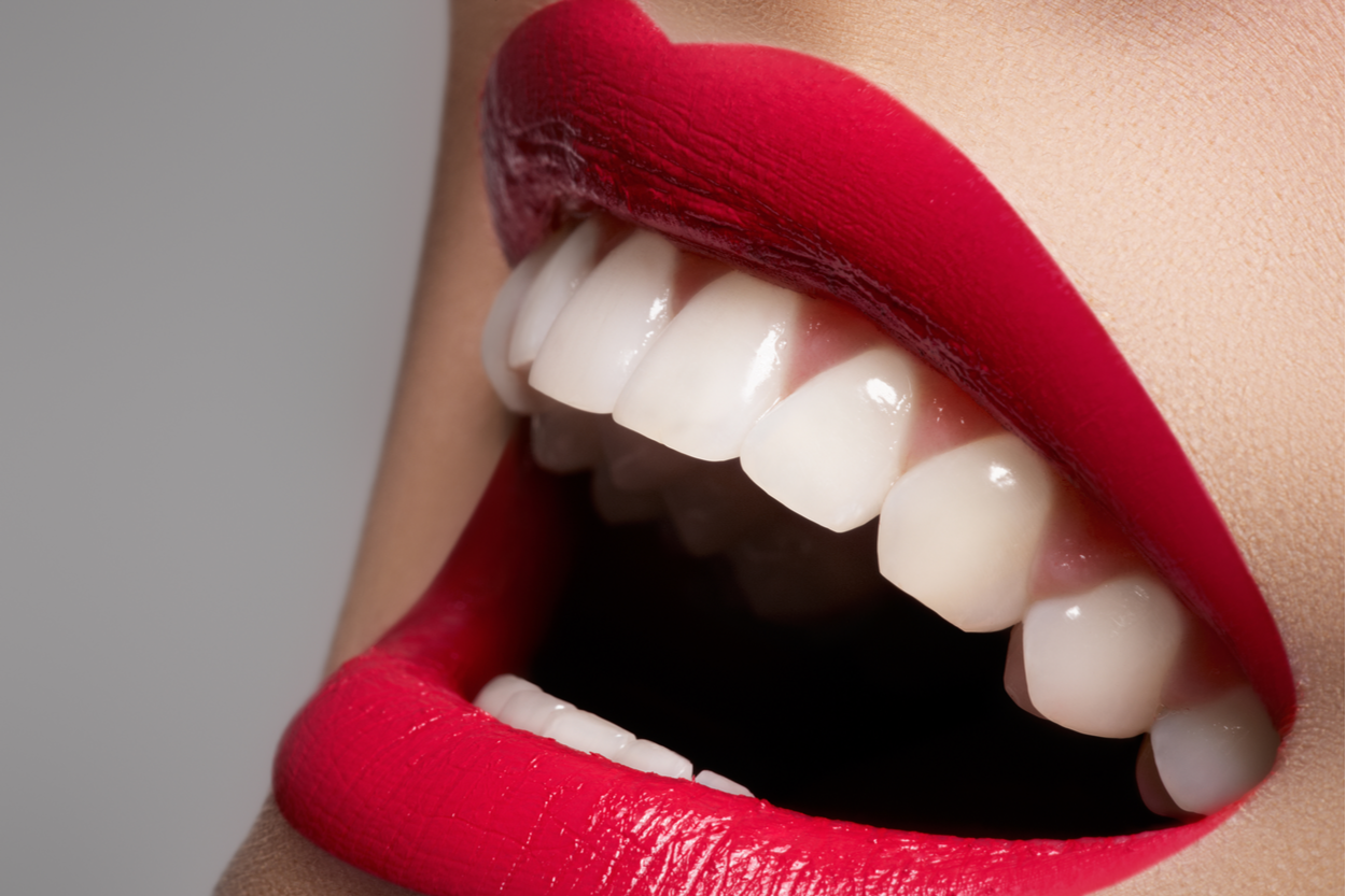sourire dent blanche